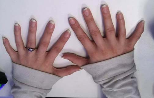 Name:  Polydactyly.jpg Views: 124 Size:  18.4 KB