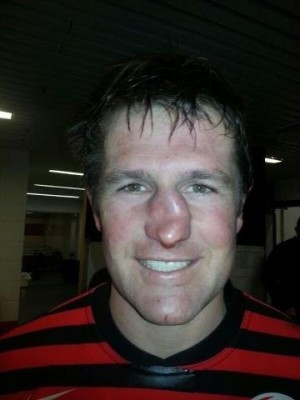 Name:  Ernst-Jouberts-rugby-nose.jpg Views: 450 Size:  22.0 KB